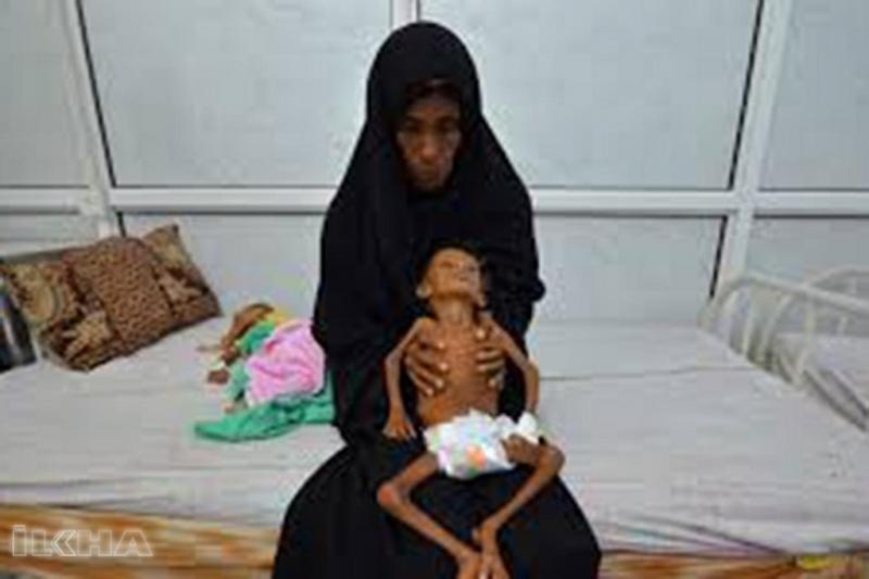 Yemen'de her 10 dakikada bir çocuk ölüyor